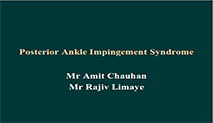 Posterior Ankle Impingement Syndrome